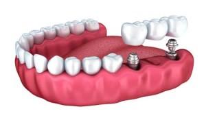 dental-bridge-implant