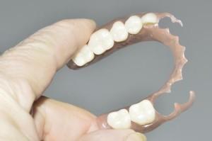 flexible-partial-denture